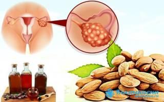 Лечение кисты яичника таблетками и народными средствами