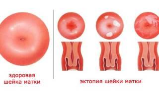 Цервикальная эктопия шейки матки