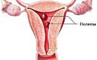 Симптомы и лечение полипов в матке