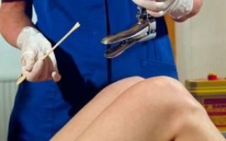 Влагалищный мазок при беременности