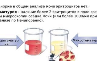 Кровь в моче при цистите у женщин: геморрагический цистит