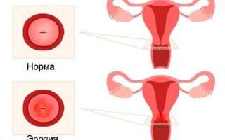 Можно ли забеременеть и родить ребенка при эрозии шейки матки?
