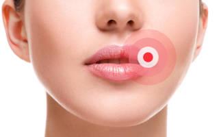 Герпес на губах при беременности: профилактика и лечение