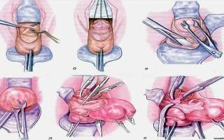 Ход операции при экстирпация матки с придатками