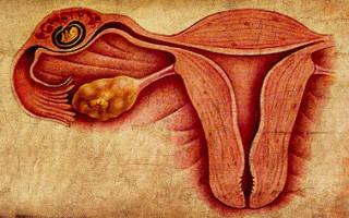 Как удаляют внематочную беременность?