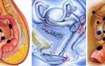 Можно ли забеременеть при эндометриозе?