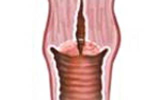 Причины, симптомы и лечение гипертрофии шейки матки