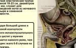 Признаки цистита у мужчин и его лечение