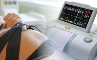 Расшифровка КТГпри беременности: норма и патология