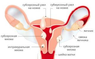 Причины и лечение миомы матки