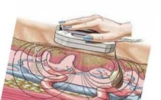 Физиотерапия: магнит в гинекологии