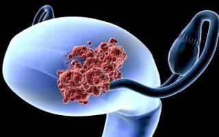 Аденокарцинома тела и шейки матки: степень дифференцировки и прогноз